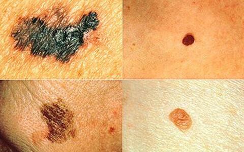 Vasakul melanoomile omaste tunnustega sünnimärgid, paremal terved.