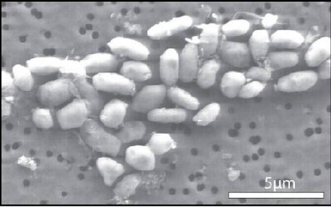 Mono soolajärvest leitud bakter elektronmikroskoobi all.