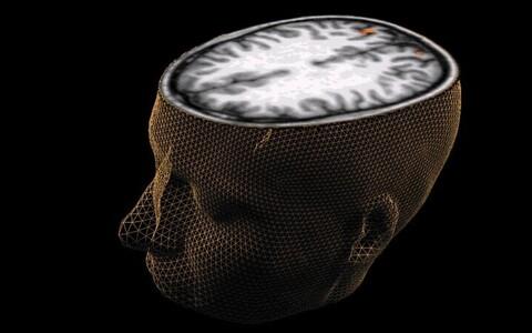 Inimese aju pakub jätkuvalt avastamist.