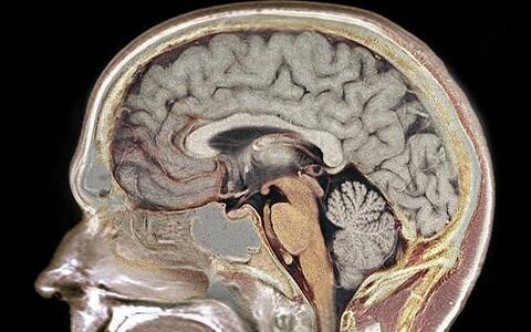 Suurem hallolluse tihedus võib kompenseerida väiksemat ajumahtu.