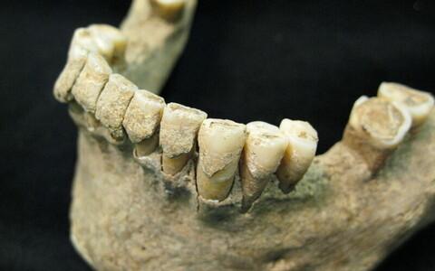 Iidsed hambad hoiavad DNA-d tallel.