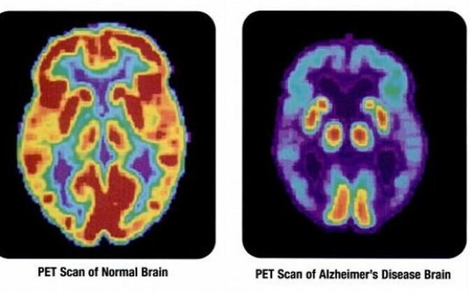 Alzheimeri tõvele on omased ajus toimuvad muutused
