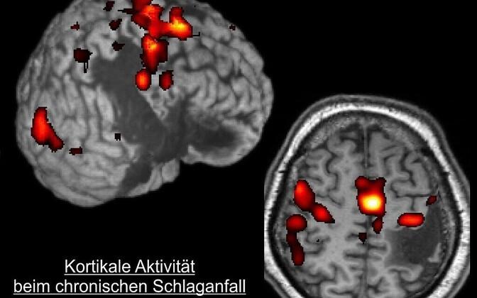 Mälu ja mõtlemisvõime halvenemine võivad peegeldada insuldiohtu