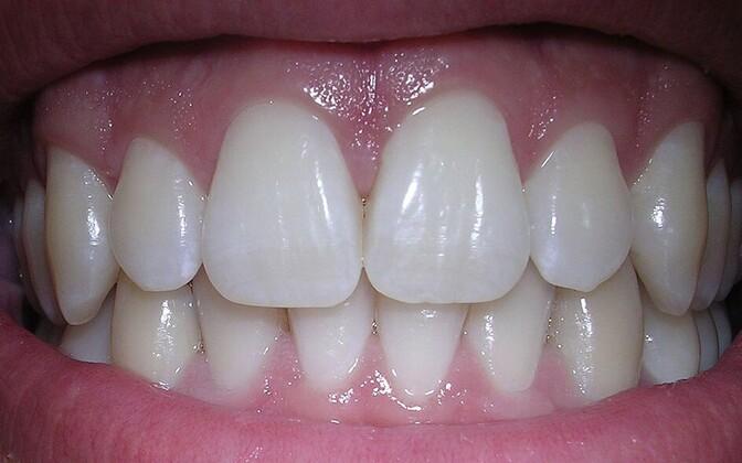Terved hambad on suureks väärtuseks