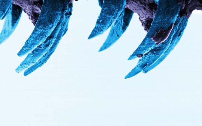 Meriteo hambad skaneeriva elektronmikroskoobi all.
