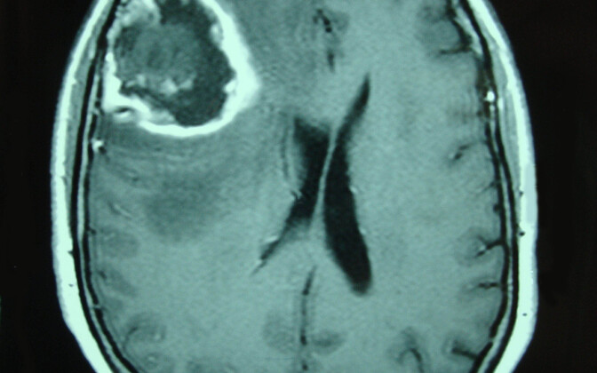Agressiivne ajukasvaja multiformne glioblastoom.