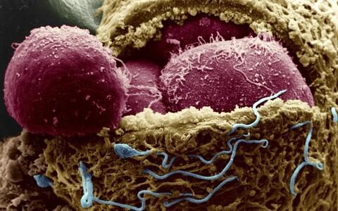 Nelja päeva vanune inimembrüo. Munaraku kest on avatud, selle seest paistavad embrüorakud, munaraku pinnal on näha ka spermatosoide.