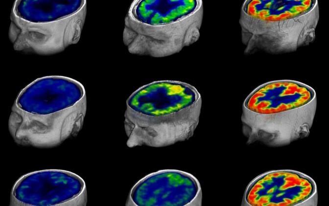 Aju glükoositarve vegetatiivses seisus ning minimaalselt ja täielikult teadvusel olles (vasakult paremale).