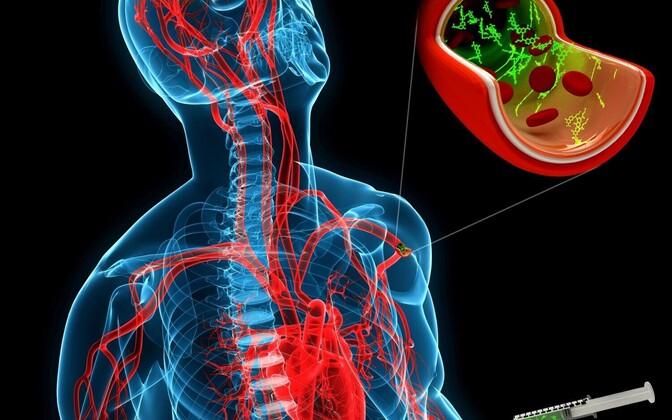 Veeni süstitud peptiid leiab tee ajukahjustuse piirkonda ning kinnitub sinna.