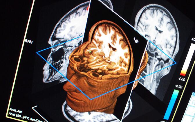 Funktsionaalse magnetilise resonantsi kuvamisega ehk nn fMRI meetodiga saadud pilt aju aktiivsusest.
