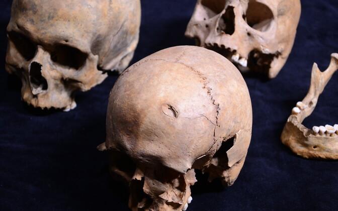 Tallinna võllamäelt leitud koljud. Esiplaanil on surmaaegse otsmikuluuvigastusega mehe kolju.