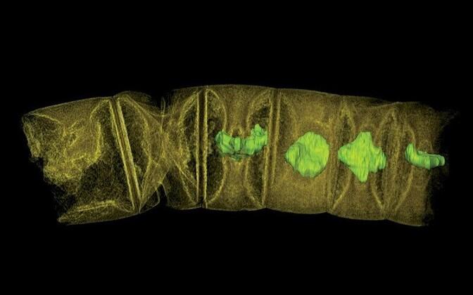 Sünkrotroni all koostatud vetika rekonstruktsioon.