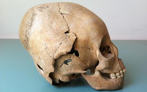 V sajandil elanud hunni kolp.