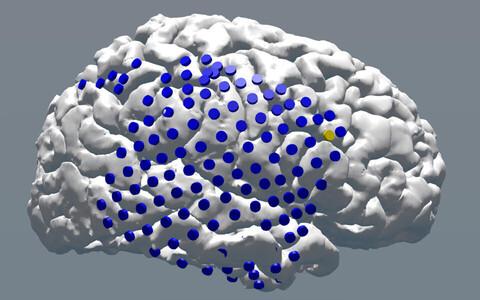 Teadlased stimuleerisid aju elektriliselt selle mitmetes punktides.