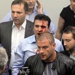 Sotsiaaldemokraatide juht Zoran Zaev (keskel helesinise särgiga) pärast rünnakut.
