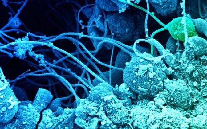 Munandites arenevad spermid.