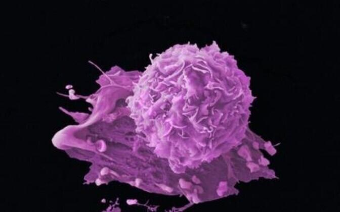 Vähkkasvaja. Tartu ülikooli teadlased on välja töötanud targa vähiravimi - uudse kullerpeptiidi, mis veresoontesse süstituna otsib üles vähirakud ja jätab kahjustamata terved koed.