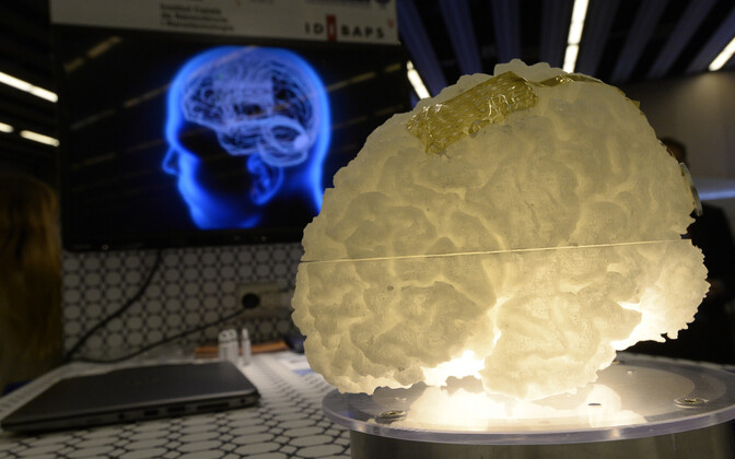 Rahvusvahelise grafeeniprojekti (Graphene Flagship) raames disainitakse grafeeni abil ka ajusensoreid, mida saab kasutada näiteks robotkäe liigutamiseks vajalike ajusignaalide ülekandmisel.