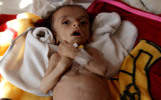 Nälga kannatanud laps Sanaa haiglas 21. novembril.
