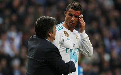 Cristiano Ronaldol löödi nägu veriseks.
