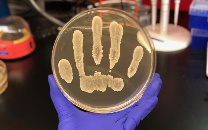 Tavaline nahal leiduv bakter sünteesid vähi vastu aitavat ühendit.