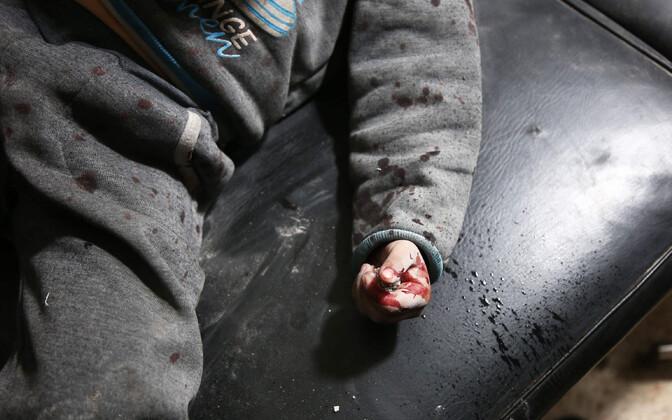 Valitsusvägede pommitamistes viga saanud laps Ida-Ghouta välihaiglas.