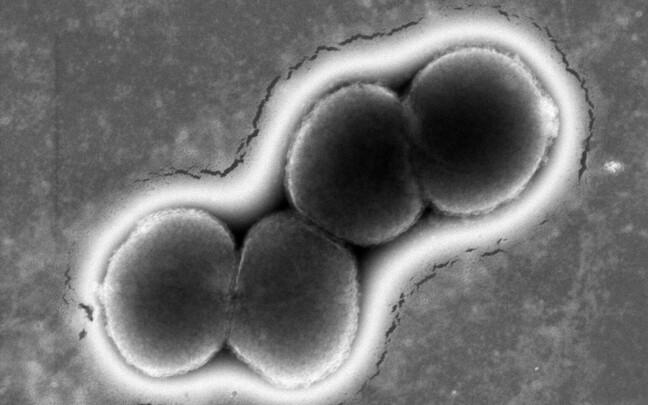 Neisseria gonorrhoeae ehk gonokokki bakter