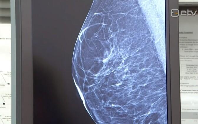 Скрининг рака груди.