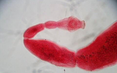 Põistang-paeluss (Echinococcus granilosus).