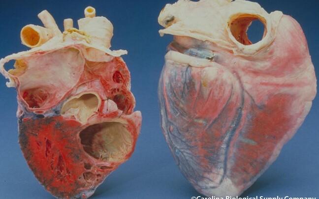 Tehnikaülikooli teadlaste patenteeritud leiutis aitab diagnoosida ka südame- ja veresoonkonnahaigusi.