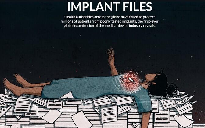 Implant Files.