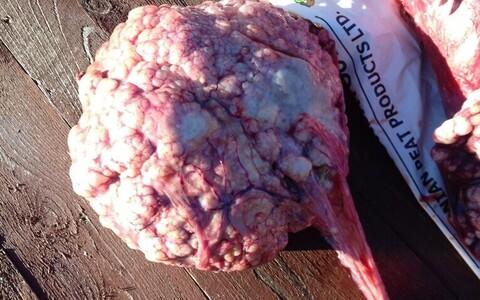 Üle kolme kilo kaaluv alveokokk-paelussi tsüstide kogum kopra kehaõõnest.