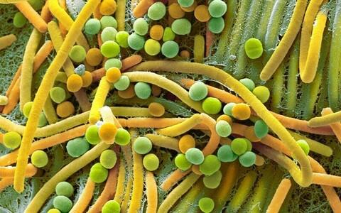 Mikrobioom mõjutab näiteks vaimset tervist, rasvumist kui ka pikaealisust.