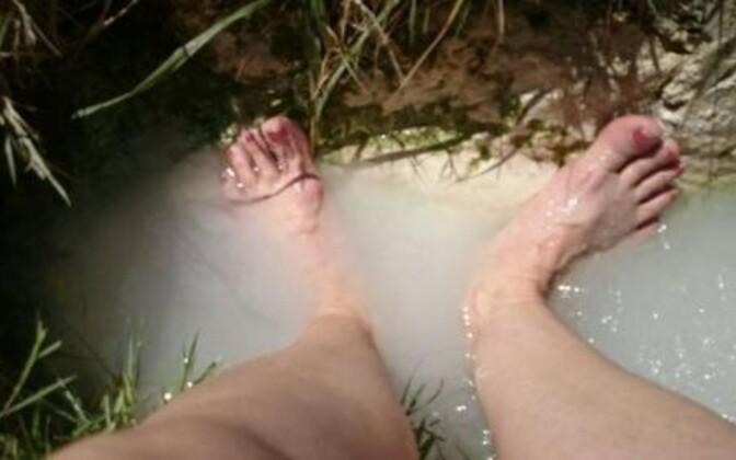 Rahutute jalgade sündroomi leevendavad mõnikord liigutamine ja jalavannid.