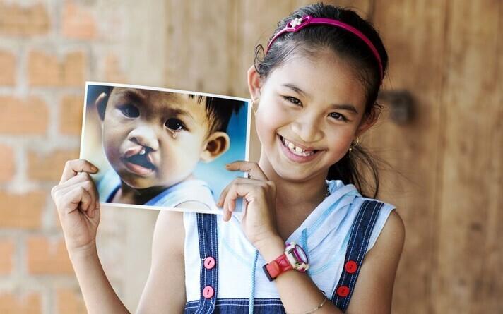 Väärarenguga sündinud tüdruk enne ja pärast operatsiooni.