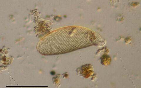 Kodaamööb (Cyphoderia ampulla) 160-kordse suurendusega.