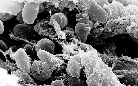 Selline näeb välja katkubakterite koloonia näriliste soolestikus.