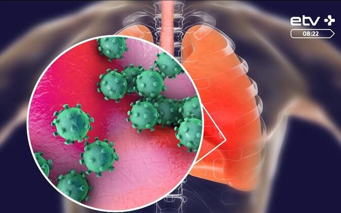 Жителей Виймси будут консультировать на тему коронавируса.