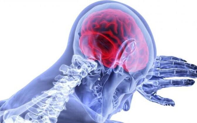 Skisofreeniat iseloomustavad olulised tegelikkuse tunnetamise ja käitumise häired, millega võib kaasneda toimetulekuvõime vähenemine.