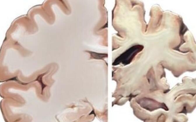 Avastusest võib abi olla dementsushaigetele mälutestide koostamisel.