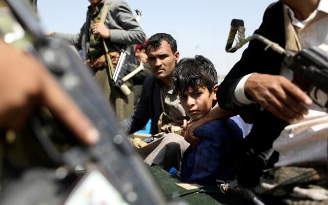 В Йемене гуманитарная катастрофа.