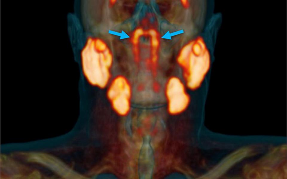 Meditsiiniteadlased avastasid inimese peast varem märkamata jäänud süljenäärmeid meenutava moodustise.