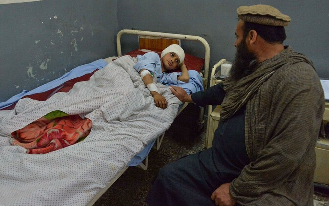 Afganistani konfliktis viga saanud laps haiglas.