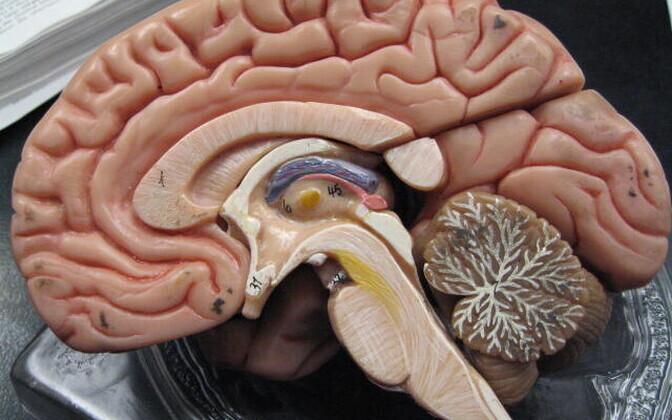 Kahjustusi nähti nii ajutüves kui ka haistesibulas