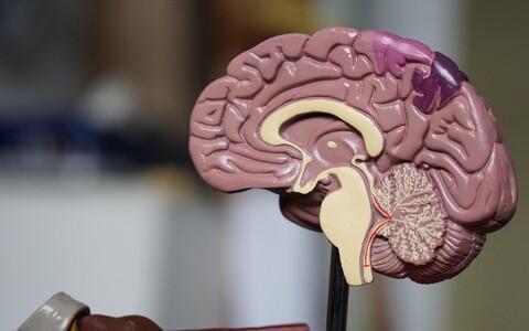 Haiguse esimesi vaevumärgatavaid tundemärke võib lahutada aju ruumala tuntavast kahanemist ja tõsisematest sümptomitest kuni 20 aastat.