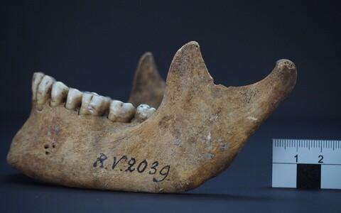 Rinnukalnsis umbes 5000 aastat tagasi katku surnud mehe lõualuu.